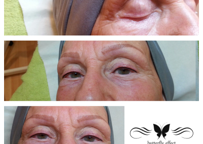 alopecia eyeliner permanent makeup