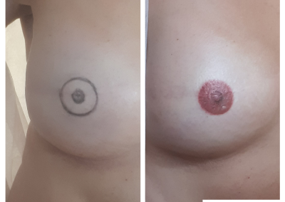 areola reconstruction
