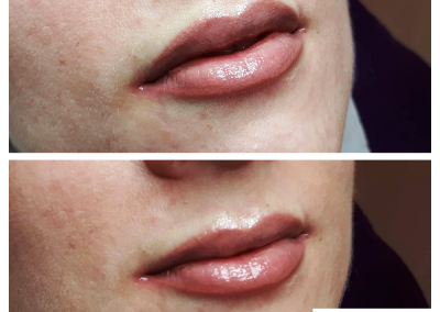 lips permanent makeup 2